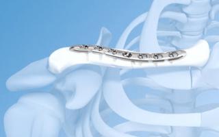 Остеосинтез ключицы пластиной