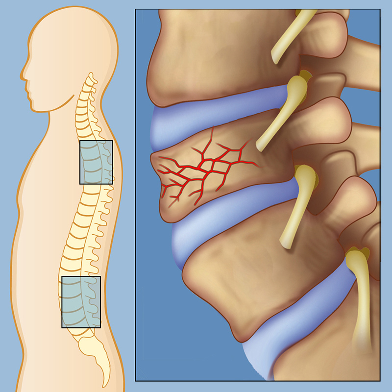 Компрессионный перелом позвонка грудного отдела позвоночника лечение