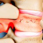 Гипсовый корсет при переломе поясничного позвонка