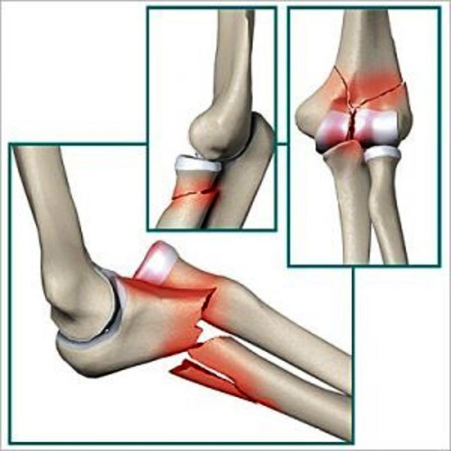 Виды переломов локтевого сустава