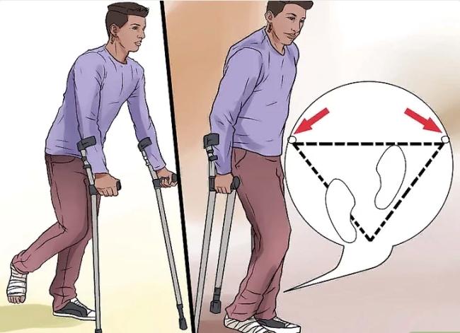 Во время передвижения опираются на оба костыля и на здоровую конечность