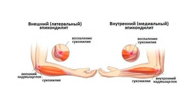 Воспаление сухожилия локтевого сустава – эпиконделит (локоть теннисиста)