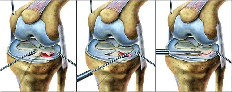 Этапы лечения разрыва заднего рога мениска