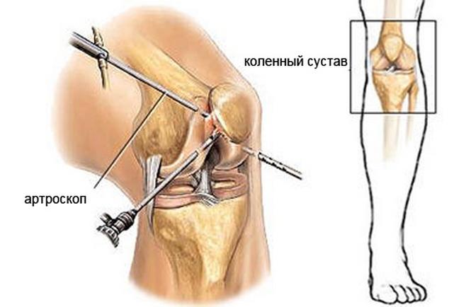 Артроскопия - возможность осмотреть колено изнутри