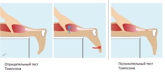 Диагностические тесты на выявление повреждения сухожилия