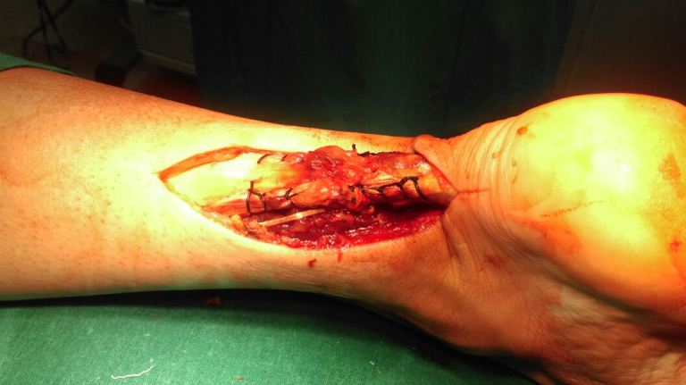 Открытая операция с ушиванием сухожилия