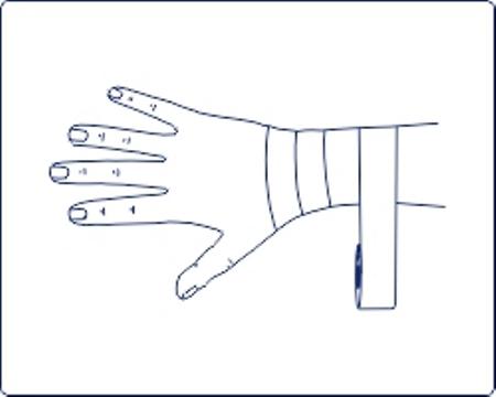 Эта техника также предполагает легкое фиксирование, поэтому используется в основном в профилактических целях