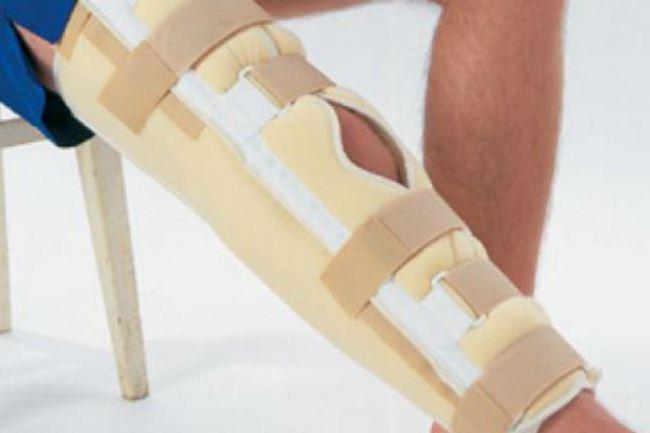 Бандажа фиксирующий колено