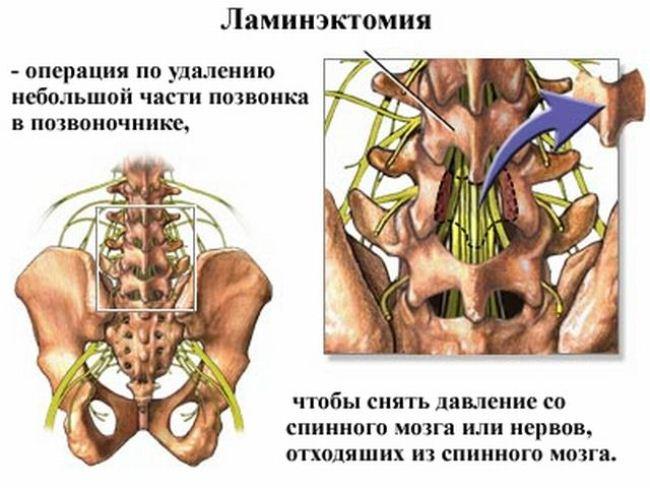 Что такое позвоночная ламинэктомия