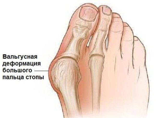 Деформация первого пальца стопы возникает из-за слабого соединения костей в суставе