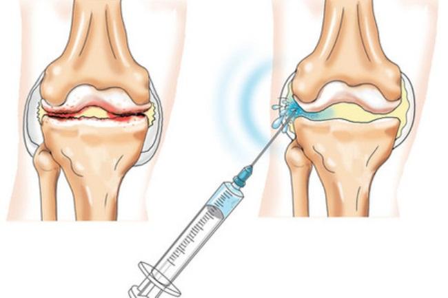 Для целей диагностики врач отбирает часть жидкости коленного сустава, закачивая ее в медицинский шприц