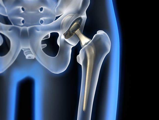 Замена поврежденного сустава имплантатом