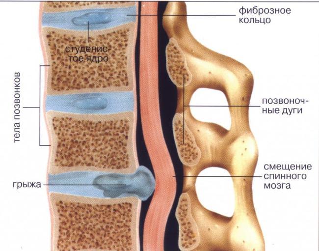 Грыжа – разрушение диска, приводящее к сдавливанию тканей спинного мозга; как правило, требует оперативного вмешательства