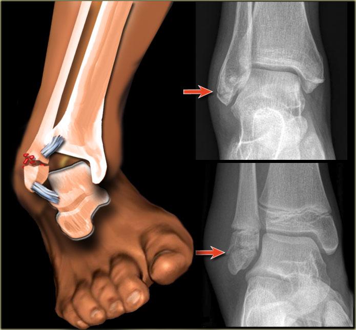 Характер повреждения лодыжки зависит от особенностей травмы