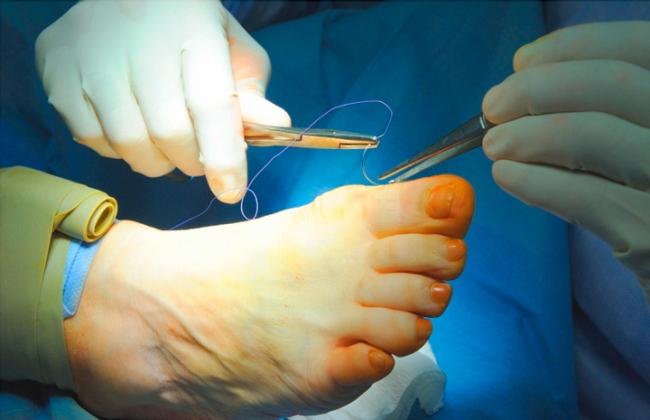 Как проводят операцию на большом пальце ноги