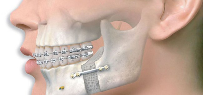 Лечение челюсти остеосинтезом