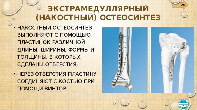 Накостный тип остеосинтеза