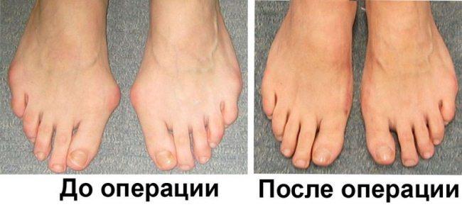 Ноги до и после оперативного вмешательства
