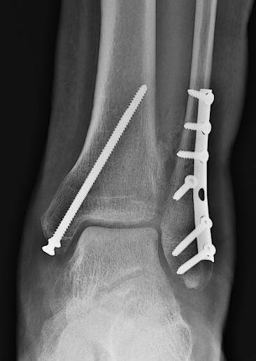 Операция обеспечивает надежную фиксацию костей металлическими болтами и пластинами