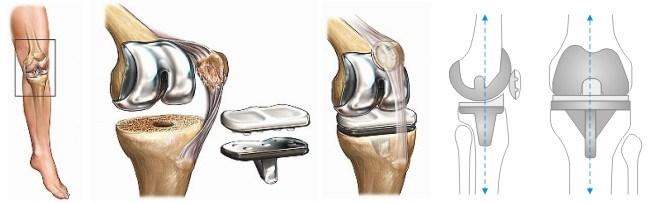 Особенности протезирования коленного сустава