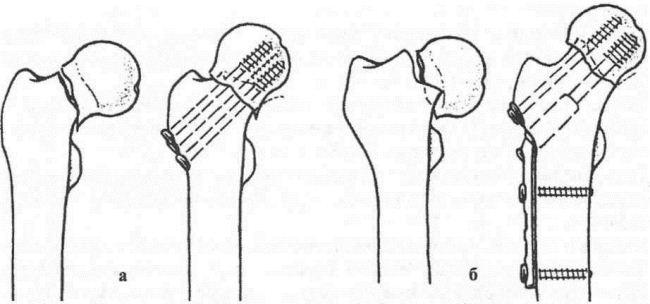 Остеосинтез при переломах шейки бедренной кости