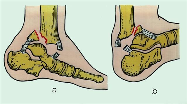 Поврежден задний (а) и передний (б) край, показана операция по остеосинтезу