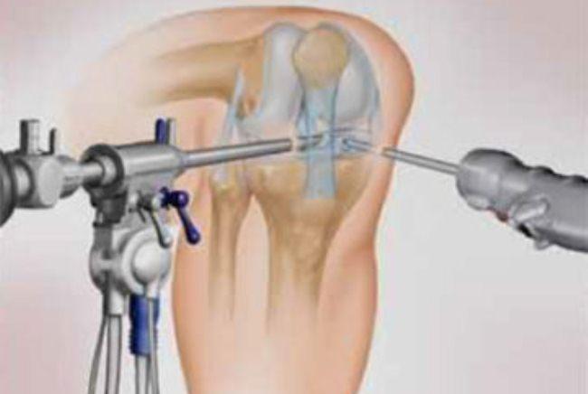 При артроскопии в полость сустава вводятся артроскоп (слева) и хирургические инструменты (справа)
