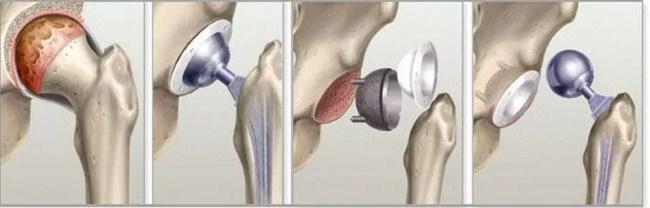 Принцип установки тазобедренного протеза