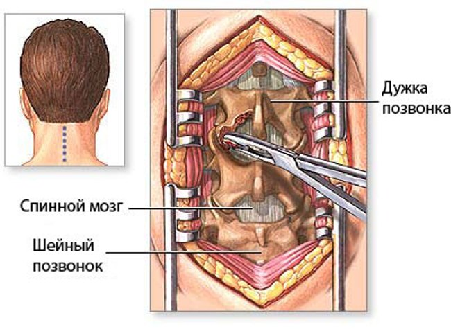 Процесс проведения ламинэктомии