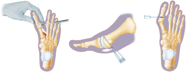 Проведение операции на стопе
