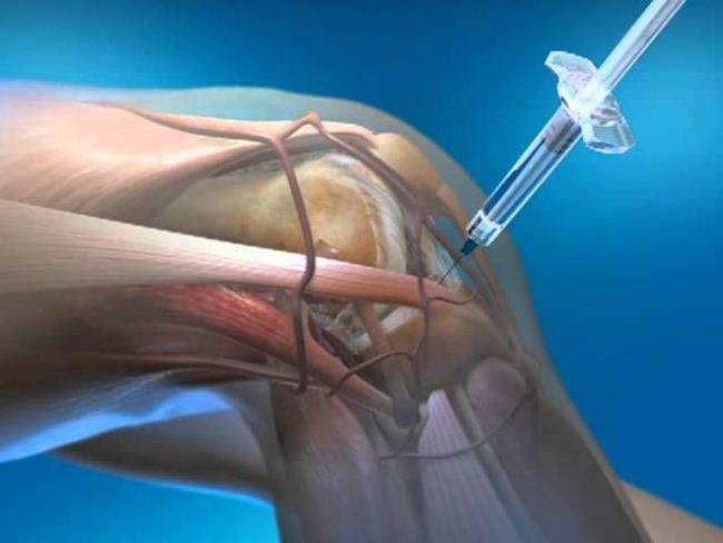 Пункция – это точный прокол, благодаря которому игла попадает в полость коленного сустава и доставляет лекарственные вещества к тканям