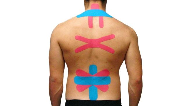 Разновидности тейпирования спины