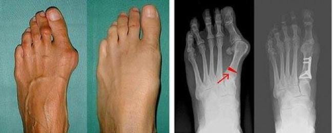 Рентгеноскопия обязательно проводится накануне исследования
