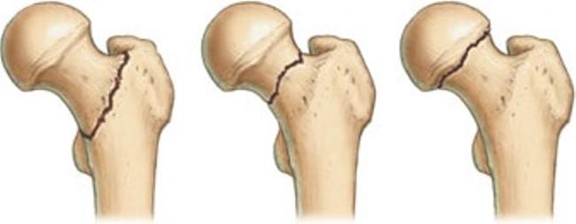 Шейка – наиболее тонкая часть бедренной кости, поэтому она больше всего уязвима перед травматическими воздействиями