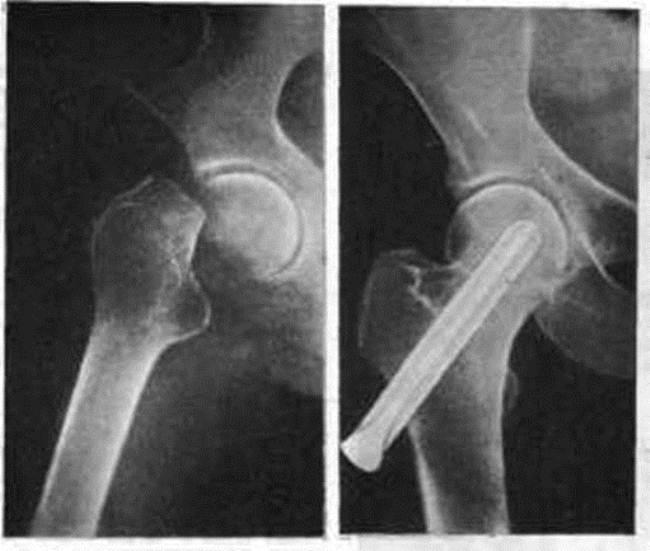 Снимок рентгена до и после установки гвоздя Смит-Петерсена