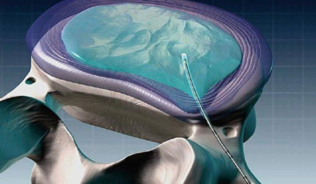 Суть операции – введение электрода, создающего холодную плазму, в тело диска, благодаря чему его размеры уменьшаются