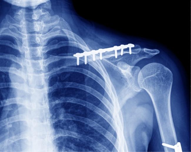 В качестве фиксирующего элемента часто используют металлическую скобу, надежно соединяющую части кости друг с другом