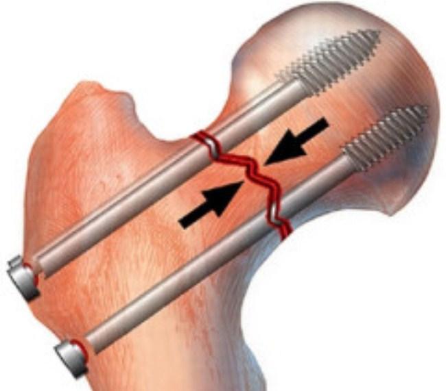 В операции по сращиванию кости используют 2 шурупа