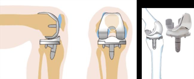 Различные виды операции на коленном суставе