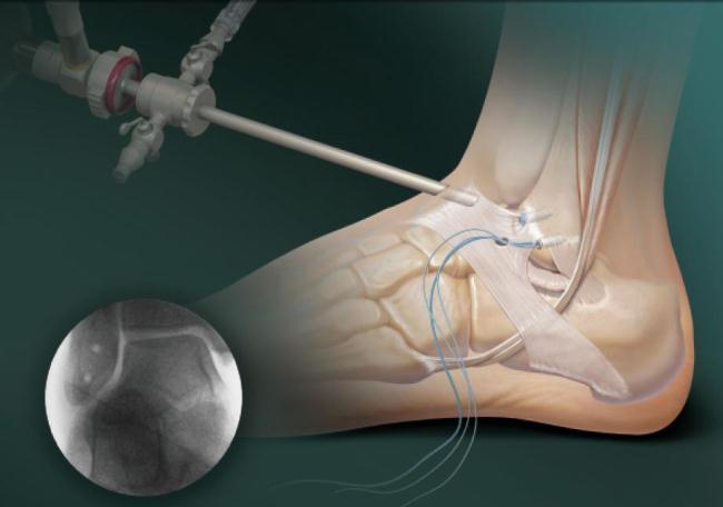 Во время операции хирург вводит в полость сустава артроскоп, который позволяет контролировать все манипуляции с помощью видеоизображения