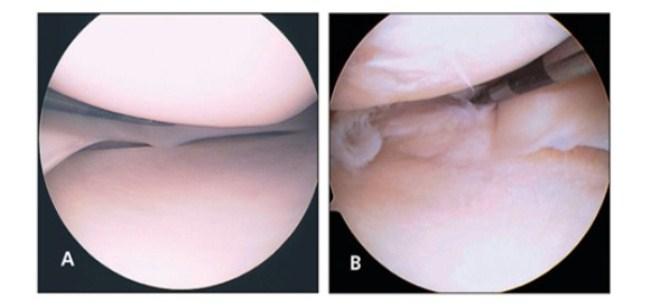 Здоровый (А) и поврежденный (В) мениск