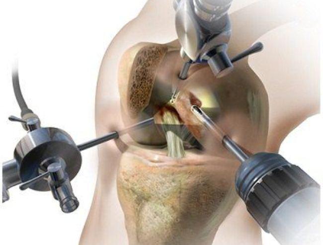 Эффективное хирургическое вмешательство