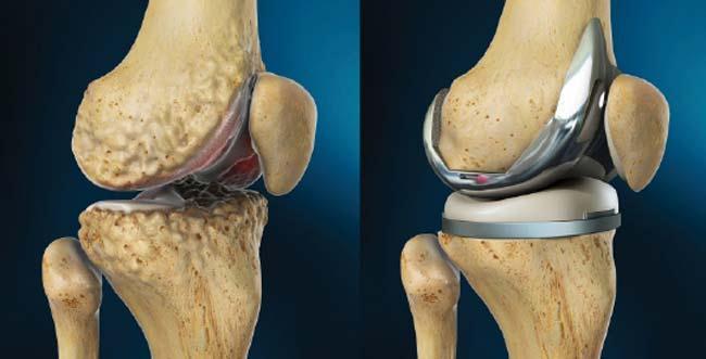 Результат эндопротезирования поврежденного коленного сустава