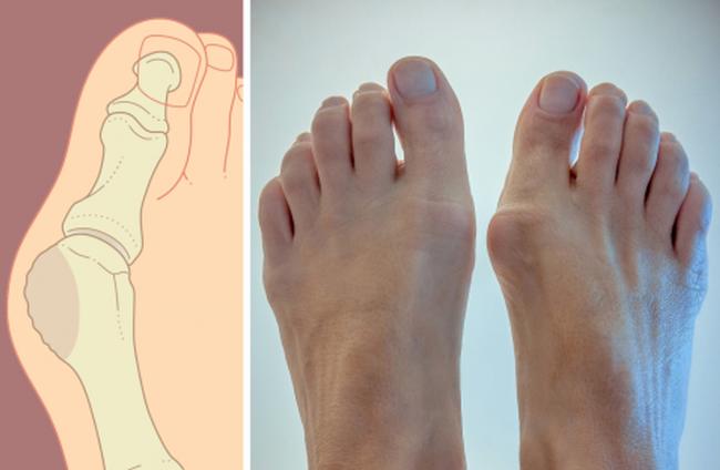 Существует несколько видов лечения увеличенной кости на большом пальце