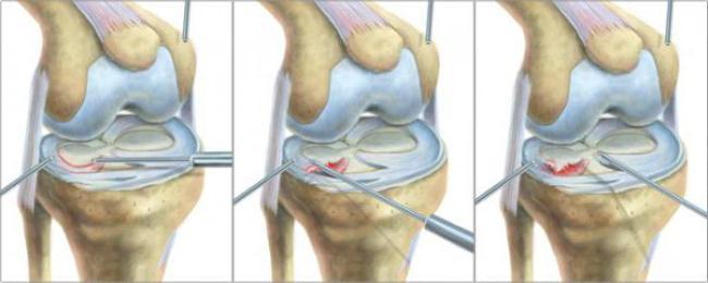 Необходимость проведения операции
