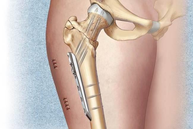 Остеосинтез бедренных костей