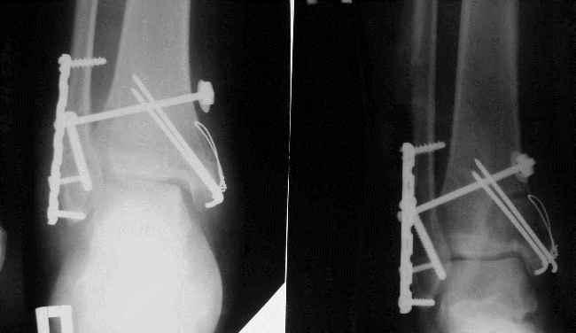 Лечение перелома лодыжки пластиной