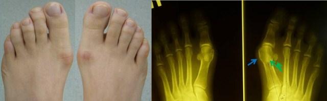 Рентген стопы при вальгусной деформации
