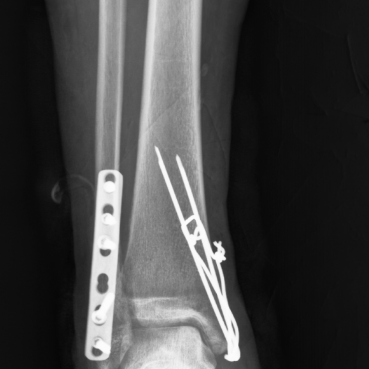 Снимки после операции
