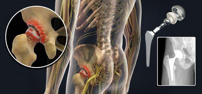 Эндопротезирование тазобедренного сустава больничный лист лечение коленных суставов в харькове